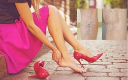 """Bác sĩ BV Việt Đức cảnh báo căn bệnh khiến """"tê chân, chuột rút về chiều"""": Phụ nữ thường đi giày cao gót cần hết sức lưu ý"""