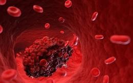 Phát hiện cục máu đông trong cơ thể: 6 dấu hiệu vàng giúp bạn nhận ra ngay!