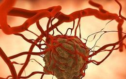 Một năm có 6000 người tử vong vì căn bệnh ung thư này: 5 bước tự kiểm tra; dấu hiệu cần đến gặp BS ngay