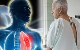 Đàn ông nên tầm soát ung thư gì: Theo tư vấn của chuyên gia ung bướu, có 4 loại ai cũng cần biết để tự bảo vệ sức khỏe