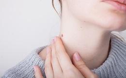 4 hiện tượng lạ ở vùng cổ cho thấy có nguy cơ mắc ung thư tuyến giáp
