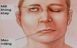 Người đàn ông bị méo miệng, mắt không khép kín được sau khi tắm và không giữ đủ ấm, cảnh báo căn bệnh nguy hiểm mùa lạnh