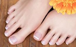 """Bàn chân giống như """"đồng hồ sức khỏe"""": 3 dấu hiệu này trên bàn chân cho biết rất có thể gan của bạn đang gặp vấn đề"""