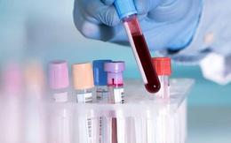Bệnh nhân COVID-19 thứ 999 ở Quảng Nam từng 2 lần xét nghiệm âm tính
