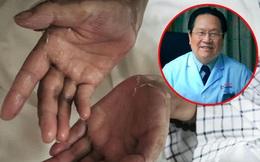 Giáo sư ung bướu Trung Quốc 14 năm chống lại bệnh ung thư vẫn sống khỏe chia sẻ 5 kinh nghiệm của bản thân
