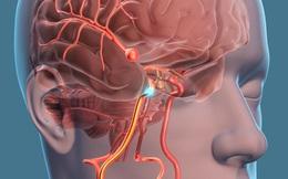 """Phó Giám đốc BV Việt Đức: 3-5% dân số bị phình mạch não nhưng không phải ai cũng cần điều trị, duy trì lối sống lành mạnh rất quan trọng để tự """"cứu mình"""""""