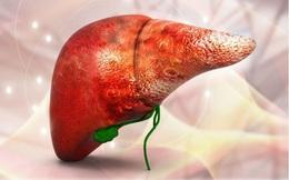 """Ung thư biểu mô tế bào gan chiếm 80% các trường hợp, thường liên quan đến các tổn thương gan mạn tính: Bệnh tiến triển vô cùng nhanh, ai cũng phải hành động ngay điều này để giảm rủi ro """"chết người"""""""