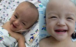 Hình ảnh đốn tim của Trúc Nhi - Diệu Nhi sau ca mổ tách rời 20 ngày