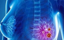 Có thể phát hiện được dấu hiệu sớm của ung thư vú?