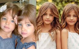 Cặp song sinh được mệnh danh đẹp nhất thế giới, 6 tháng tuổi đã nhận hợp đồng quảng cáo có ngoại hình thay đổi ra sao sau 10 năm?