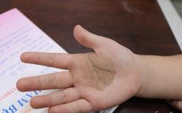 Nhiều cha mẹ tại TP.HCM đưa con đi cầu cứu bác sĩ vì bàn tay, bàn chân xuất hiện các tổn thương lạ
