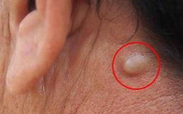 3 tín hiệu ở cổ là biểu hiện sớm của bệnh ung thư tuyến giáp, kiểm tra xem bạn có gặp phải triệu chứng nào không