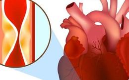 Vã mồi hôi, đau tức ngực: Dấu hiệu của căn bệnh nguy hiểm có nguy cơ tử vong tới 80%