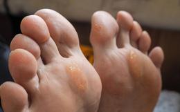 """Nếu bỗng dưng thấy bàn chân có 5 sự thay đổi này, coi chừng cơ thể đang mắc trọng bệnh và cần được """"giải cứu"""" lập tức"""