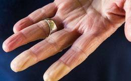 Soi tay chân cũng có thể nhận biết được 5 biểu hiện cảnh báo bạn có nguy cơ mắc ung thư hay không