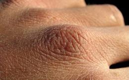 Chuyên gia da liễu tiết lộ 3 bệnh về da thường gặp vào mùa đông, muốn phòng tránh phải làm đủ 10 điều quan trọng