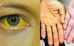 """Bác sĩ nhắc nhở: Trong cơ thể xuất hiện """"2 vàng, 2 đỏ"""", nếu bỏ qua cẩn thận gan hỏng"""