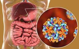 5 loại ung thư có tính di truyền cao, trong gia đình có người bị thì nên thường xuyên khám sức khỏe để xử lý sớm nếu có bệnh