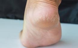 3 đặc điểm ở bàn chân giúp nam giới nhận biết mình có nằm trong nhóm sống thọ hay không