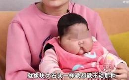 Trung Quốc thu hồi loại kem khiến trẻ sơ sinh tăng cân bất thường