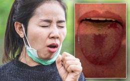 """Chuyên gia phát hiện, COVID-19 bắt đầu phát triển thêm nhiều triệu chứng mới, một trong số đó là """"cái lưỡi COVID"""""""