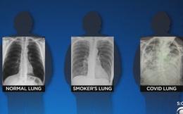 BS so sánh 3 lá phổi: Bệnh nhân Covid-19 có hậu quả tổn thương nghiêm trọng hơn, bị sẹo phổi
