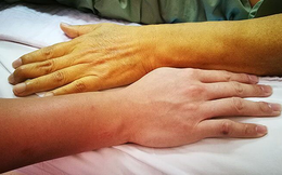 40 tuổi bị ung thư gan giai đoạn cuối, hối tiếc than: Cơ thể đã sớm kêu cứu nhưng không để ý