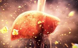 """Phó Chủ tịch hội Gan Mật: Tết uống bia rượu nhiều, 3 dấu hiệu cảnh báo tế bào gan đang bị """"huỷ hoại"""""""
