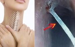 Thủng dạ dày, thực quản vì hóc xương chữa mẹo: Bác sĩ mách 2 việc cần làm khi hóc xương