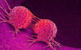 Bệnh ung thư phổ biến nhất tại Châu Á có xu hướng trẻ hoá, ngoài 30 có thể đã mắc: Phòng bệnh bằng cách nào?