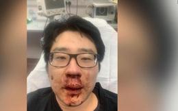 Thực trạng đáng báo động: Người gốc Á đang trở thành nạn nhân của tội ác kỳ thị trên khắp thế giới