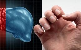 Nhìn móng tay đọc bệnh: Người bị gan nhiễm mỡ thường xuất hiện dấu hiệu này, đa số chỉ nghĩ là mất thẩm mỹ