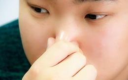 Người gan kém thường có 4 biểu hiện bất thường ở quanh miệng, nếu bạn không có thì xin chúc mừng
