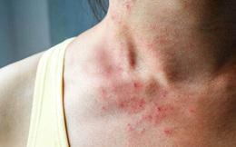 Tự kiểm tra ung thư gan bằng việc soi gương mỗi ngày: Nếu phát hiện 3 bất thường này trên da thì khả năng cao bạn đã mắc bệnh