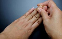 4 đặc điểm xuất hiện trên móng tay là dấu hiệu cảnh báo bệnh tiểu đường