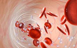4 loại bữa tối nhiều người thích ăn nhưng lại có thể phá hủy mạch máu