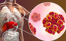 Đây là 4 lý do khiến bạn dễ bị ung thư gan: Cách phòng ngừa hiệu quả thật sự không khó