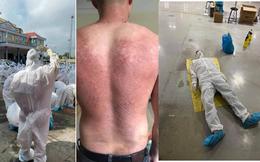 Thương đến quặn lòng trước vất vả của các y bác sĩ từ tâm dịch COVID-19: Làm việc suốt 20 giờ không nghỉ, lưng đẫm mồ hôi, bỏng rát vì mặc đồ bảo hộ giữa thời tiết khắc nghiệt