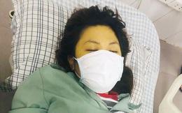 Cô gái 25 tuổi nhập viện trong tình trạng nguy kịch do lạm dụng thuốc paracetamol trong 6 ngày