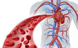 """3 nhóm thực phẩm là """"thủ phạm"""" hàng đầu gây bệnh tim mạch, hại mạch máu não, rất tiếc nhiều người vẫn hay ăn"""