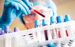 Tối 9/6, thêm 60 ca mắc COVID-19 mới và 87 bệnh nhân khỏi bệnh
