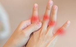 4 dấu hiệu ở tay giúp bạn nhận biết phổi của mình đang ổn hay không, nếu có đủ cả 4 thì nên đi kiểm tra phổi ngay