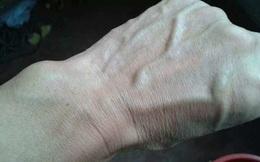 Người gan kém thường có 3 thay đổi bất thường ở bàn tay, đi khám ngay vì rất dễ là dấu hiệu của ung thư gan