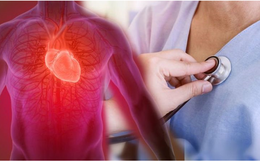 Người đàn ông 55 tuổi bị đau bụng dữ dội, bác sĩ chỉ ra thủ phạm không ngờ là nhồi máu cơ tim: Những điều cần biết về căn bệnh gây chết người nhanh hơn ung thư