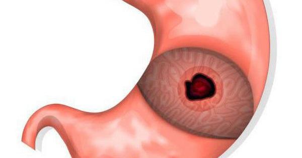 BS cảnh báo 4 ''sát thủ'' phá hỏng dạ dày, nhiều người vẫn yêu thích đưa lên miệng mỗi ngày