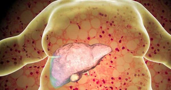Nếu đang bị gan nhiễm mỡ, có 7 điều bạn cần ghi nhớ để không làm tình trạng bệnh thêm tồi tệ