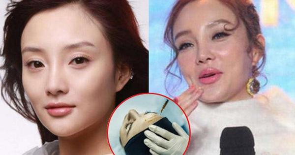 Sự thật về những mũi tiêm filler ''thần thánh'' xuất xứ từ Trung Quốc: Chi phí sản xuất 70 nghìn, bán ra có khi lên tới cả chục triệu đồng
